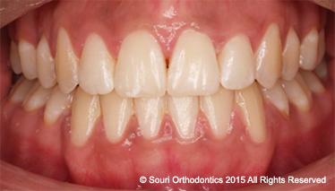 Souri Orthodontics Private Post-Treatment Front Teeth Meeting Edge-to-Edge