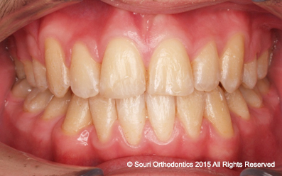 Souri Orthodontics - Private Post Treatment Protruding and Crowded Front Teeth