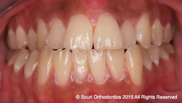 Souri Orthodontics Private Pre-Treatment Front Teeth Meeting Edge-to-Edge
