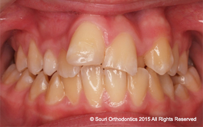 Souri Orthodontics - Private Pre-Treatment Protruding and Crowded Front Teeth
